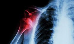 Shoulder Injury At Work?