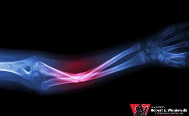 orthopedic injury workers' comp