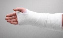 Arizona Workers' Compensation for Broken & Fractured Bones